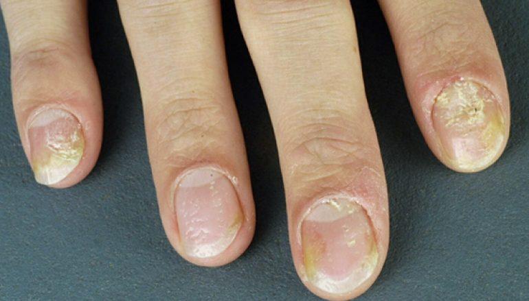 Huidaandoening psoriasis treft jong en oud
