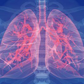 Astma: een longziekte met grote gevolgen