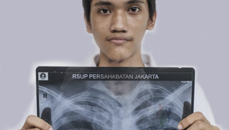 Tuberculose een ziekte van vroeger?