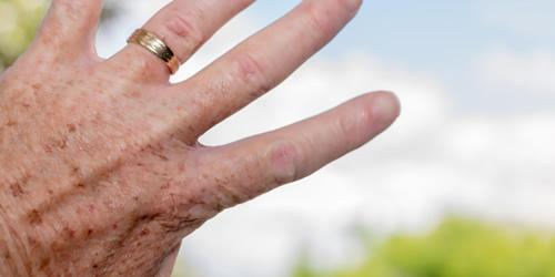 huidtherapie