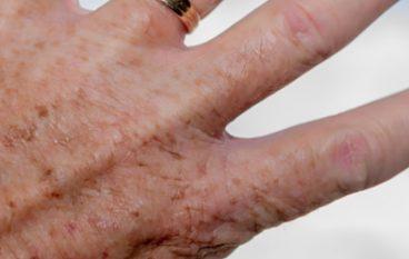 Huidtherapie voor de oudere huid
