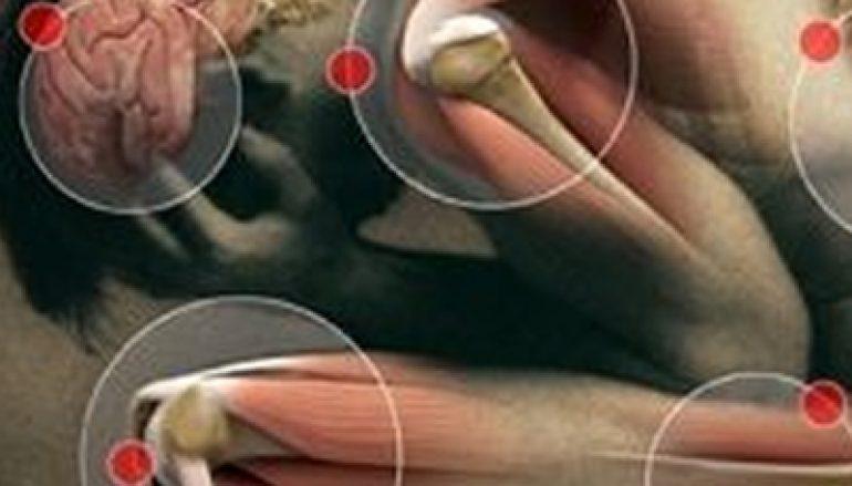 Osteoporose: Stop de calciumroof uit uw botten door actieve ontzuring!